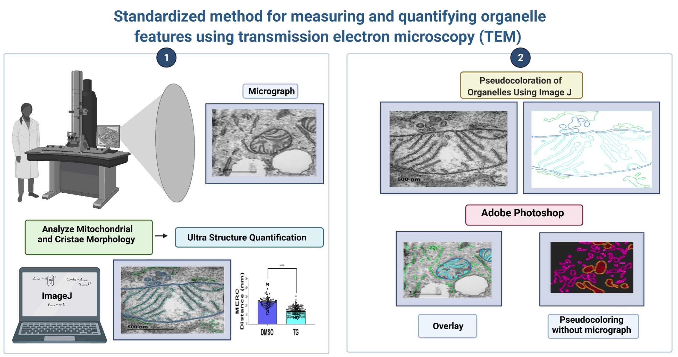 Graphic of standardized method for measuring and quantifying organelle features using transmission electron microscopy.